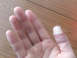 ストレス が むける 手 の 皮