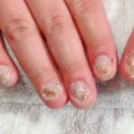 深爪矯正の方法~セルフケアで治すことはできる?